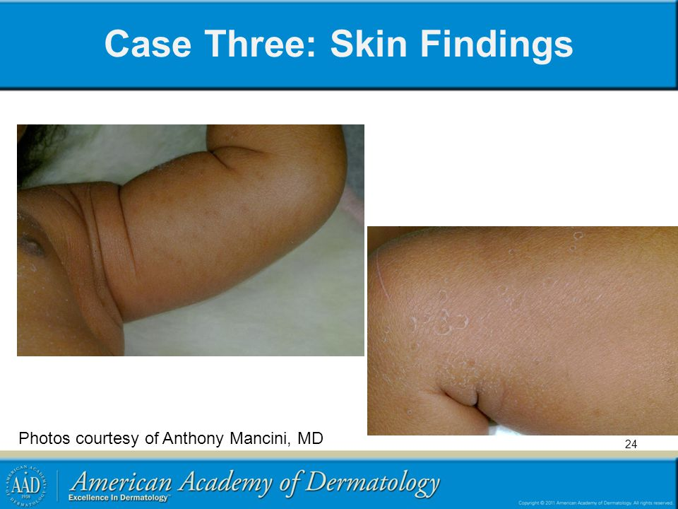 Case Three: Skin Findings