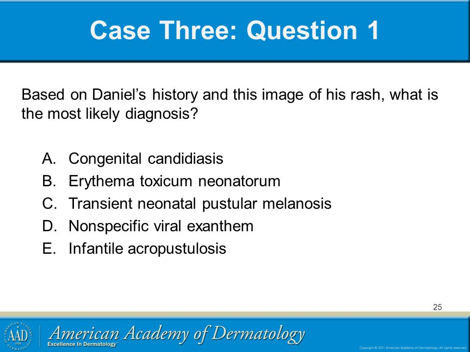 Case Three: Question 1 Based on Daniel's history and this image of his rash, what is the most likely diagnosis