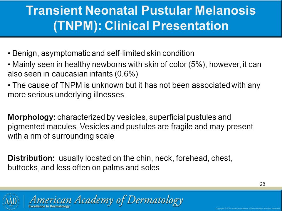 Transient Neonatal Pustular Melanosis (TNPM): Clinical Presentation