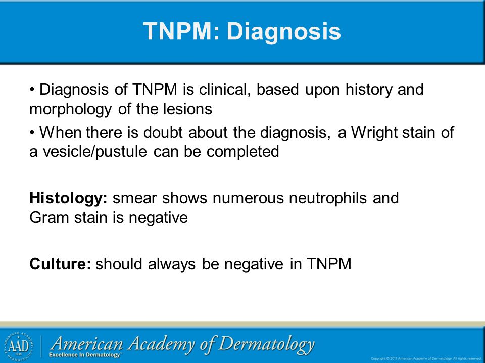 TNPM: Diagnosis Diagnosis of TNPM is clinical, based upon history and morphology of the lesions.
