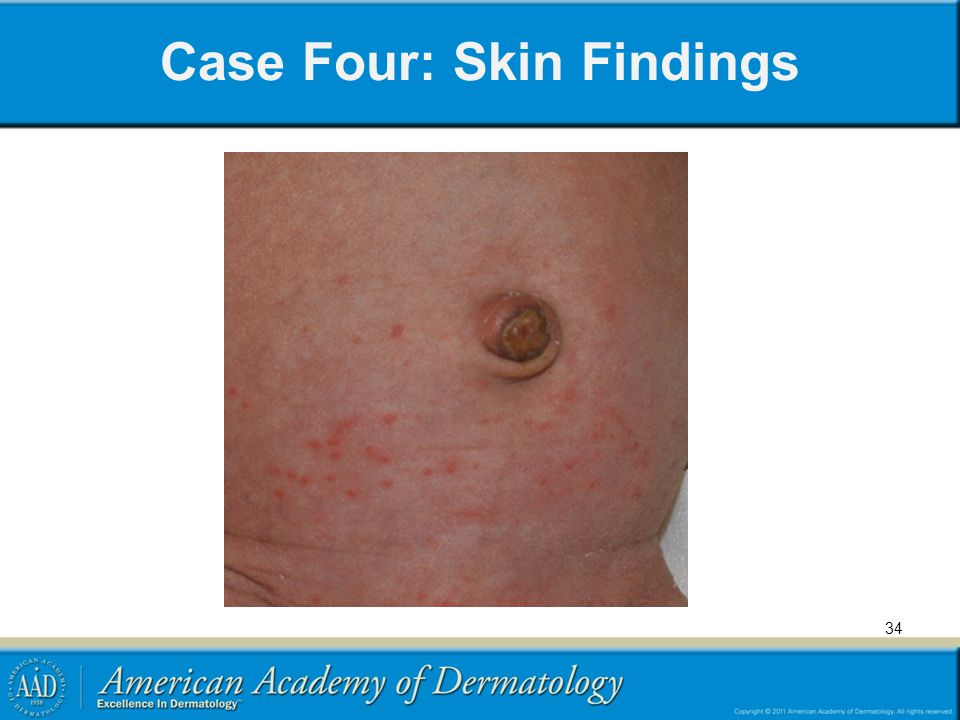 Case Four: Skin Findings