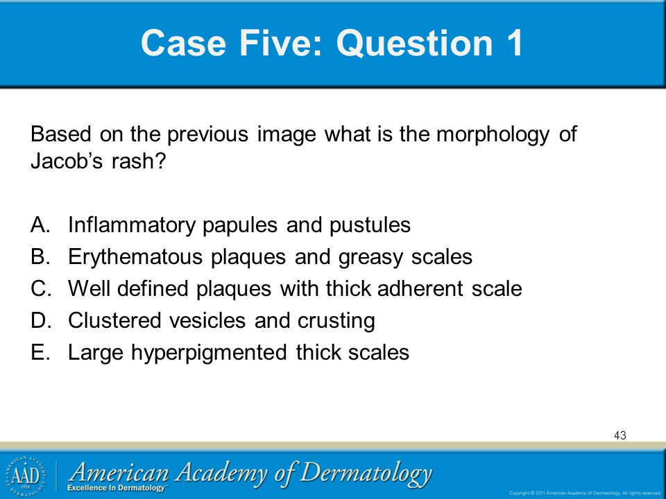 Case Five: Question 1 Based on the previous image what is the morphology of Jacob's rash Inflammatory papules and pustules.