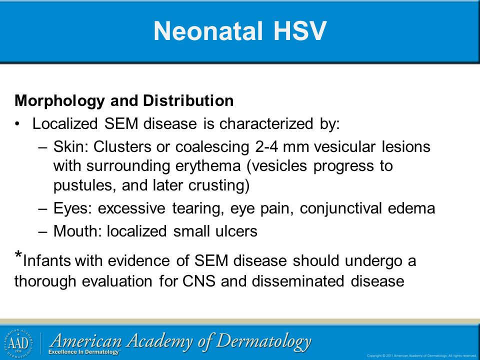 Neonatal HSV Morphology and Distribution. Localized SEM disease is characterized by: