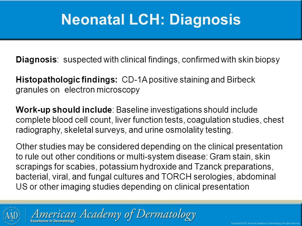Neonatal LCH: Diagnosis
