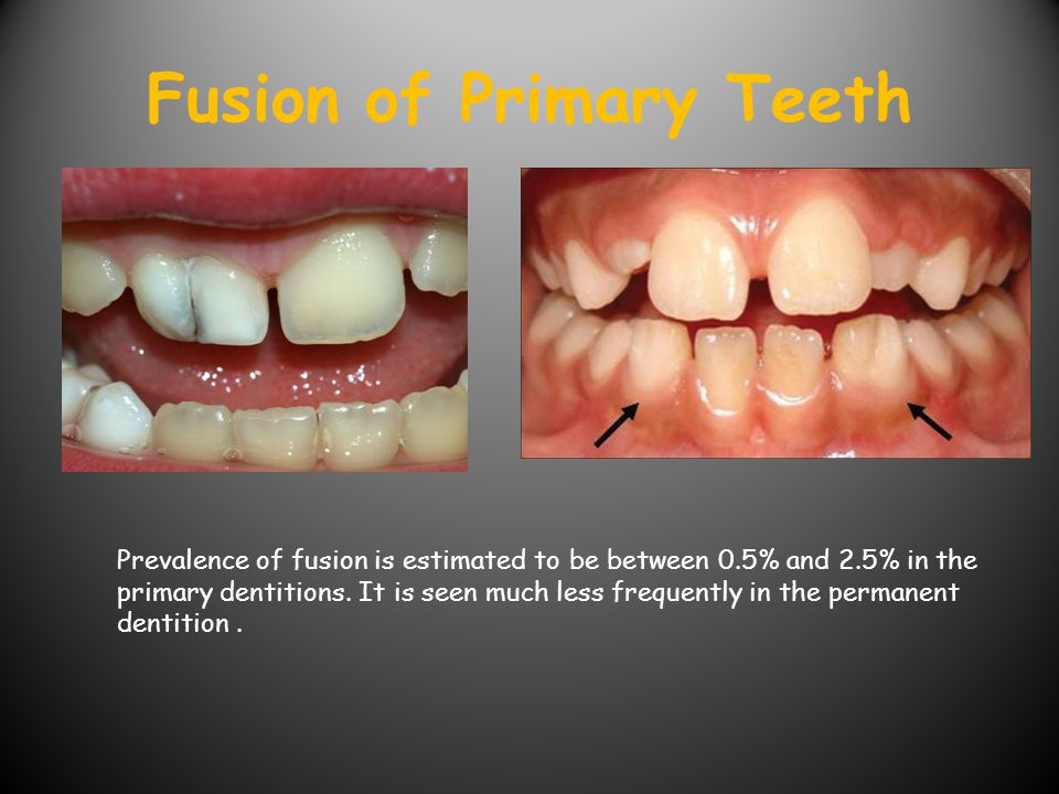 Fusion of Primary Teeth