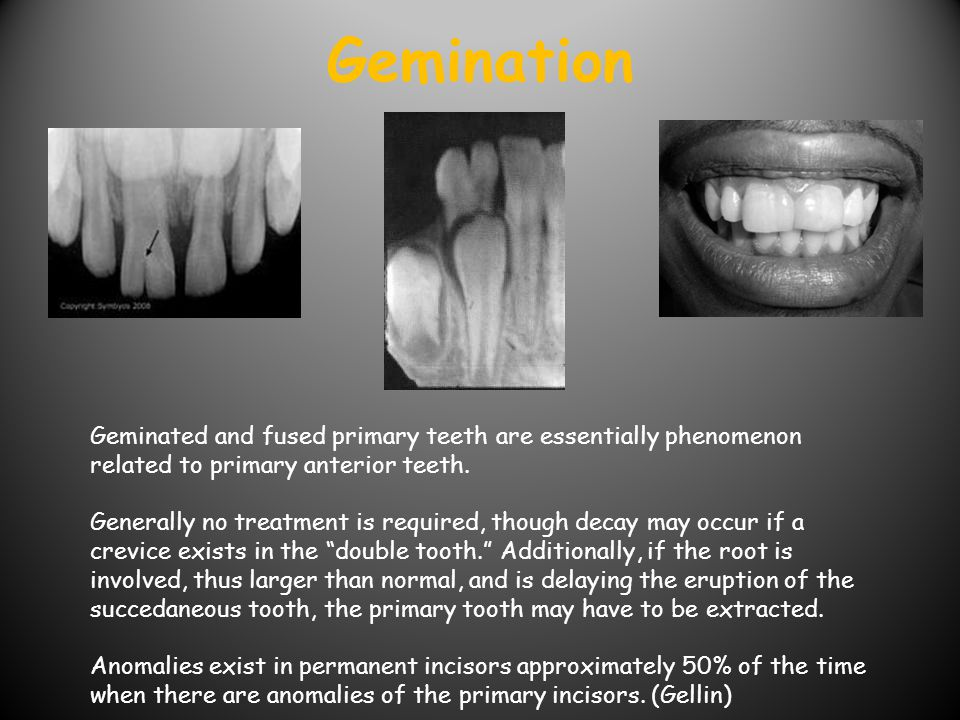 Gemination Geminated and fused primary teeth are essentially phenomenon related to primary anterior teeth.