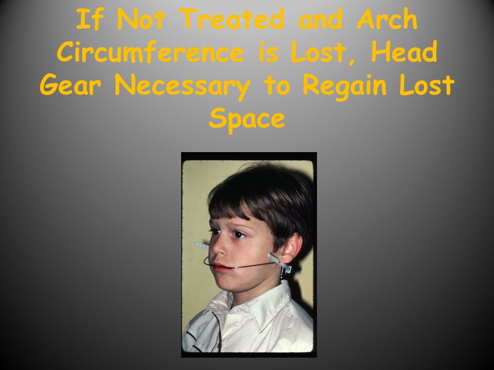 If Not Treated and Arch Circumference is Lost, Head Gear Necessary to Regain Lost Space