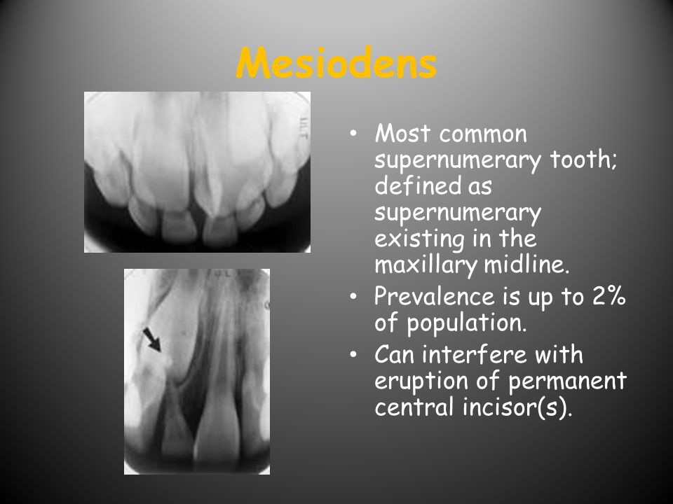 Mesiodens Most common supernumerary tooth; defined as supernumerary existing in the maxillary midline.