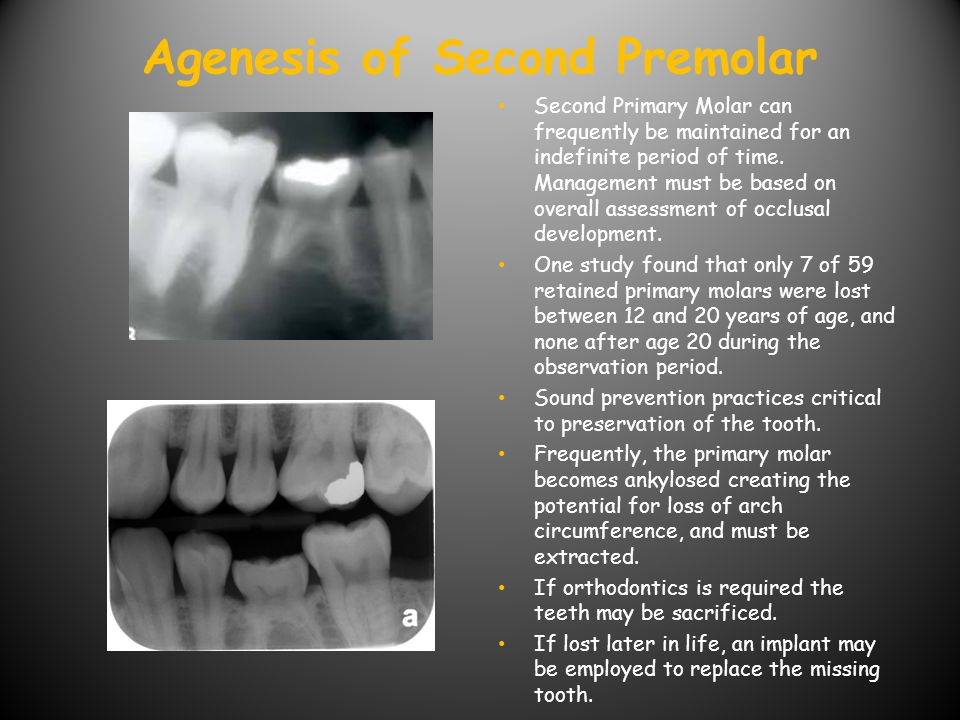 Agenesis of Second Premolar