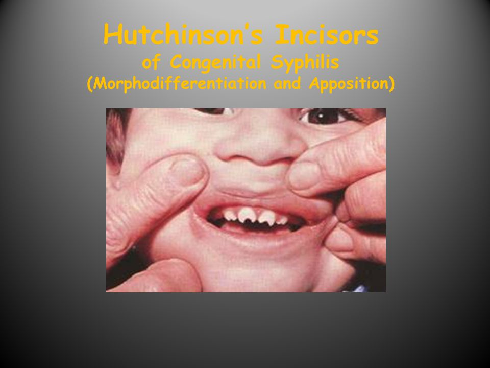 Hutchinson's Incisors of Congenital Syphilis (Morphodifferentiation and Apposition)