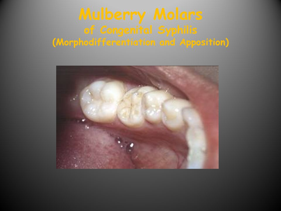 Mulberry Molars of Congenital Syphilis (Morphodifferentiation and Apposition)