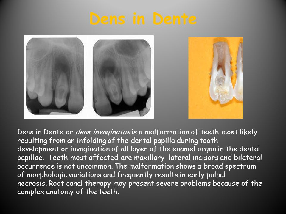 Dens in Dente