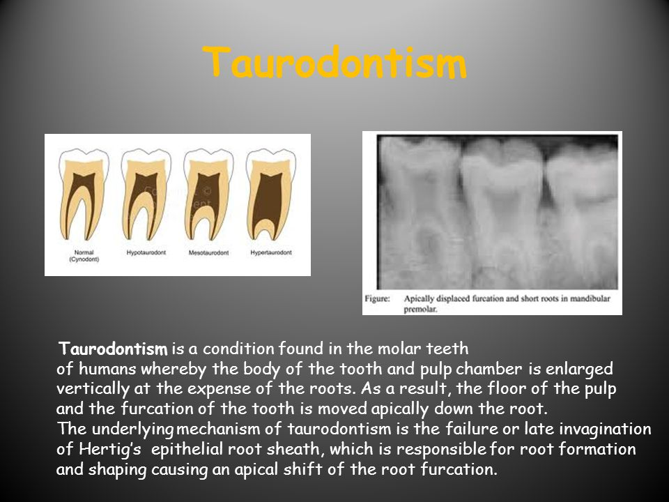 Taurodontism Taurodontism is a condition found in the molar teeth of humans whereby the body of the tooth and pulp chamber is enlarged.