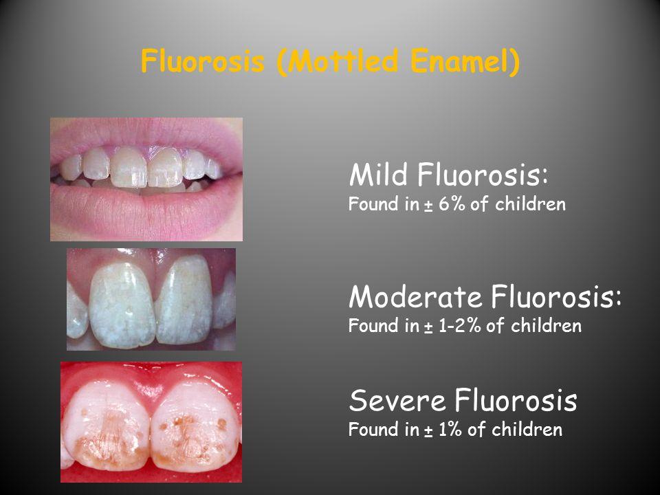 Fluorosis (Mottled Enamel)
