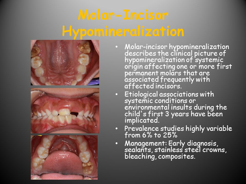 Molar-Incisor Hypomineralization