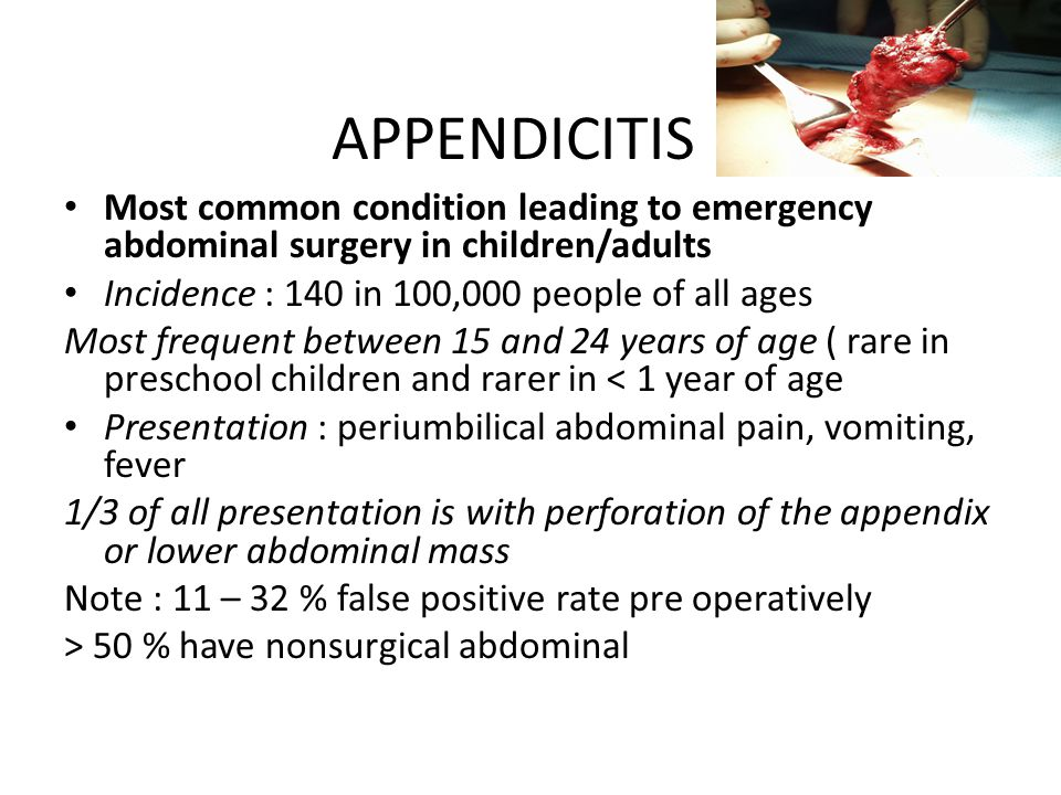 APPENDICITIS Most common condition leading to emergency abdominal surgery in children/adults. Incidence : 140 in 100,000 people of all ages.