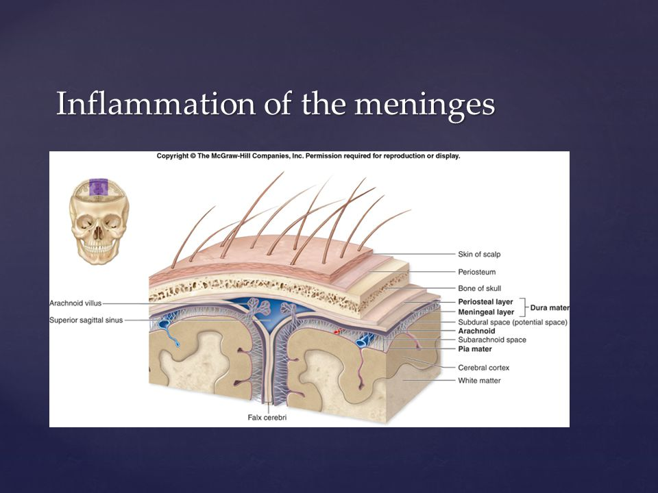 Inflammation of the meninges