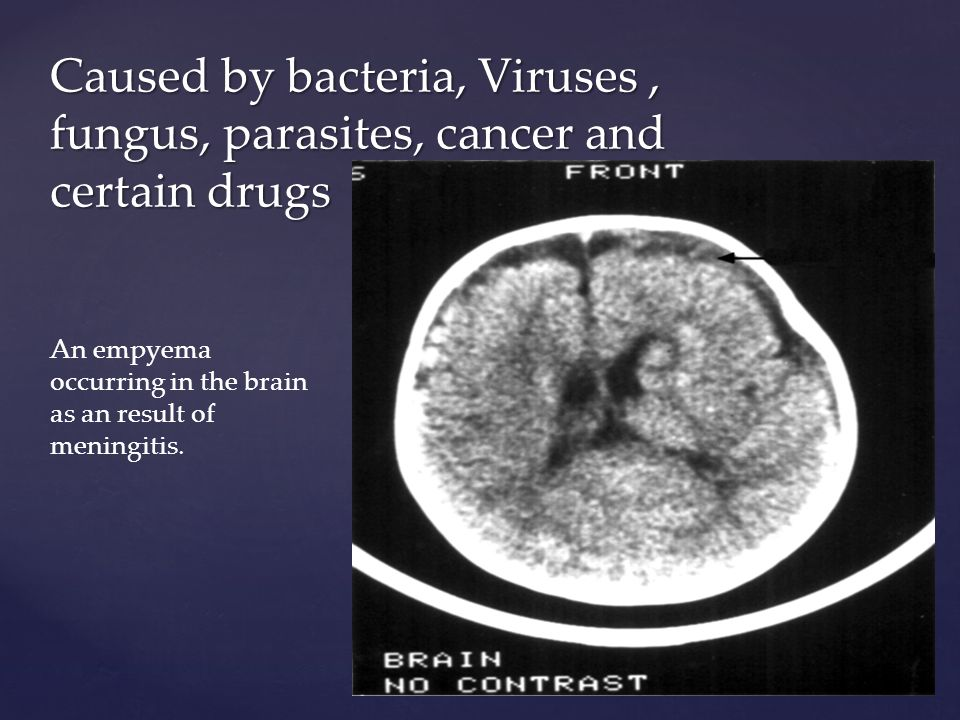 Caused by bacteria, Viruses , fungus, parasites, cancer and certain drugs