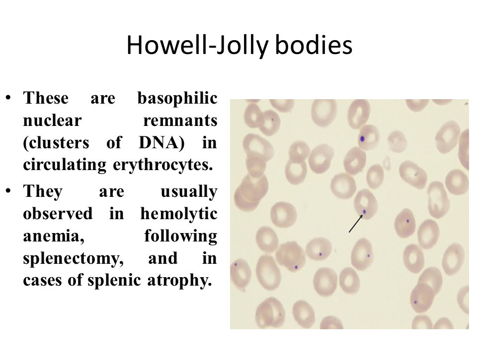 Howell-Jolly bodies These are basophilic nuclear remnants (clusters of DNA) in circulating erythrocytes.