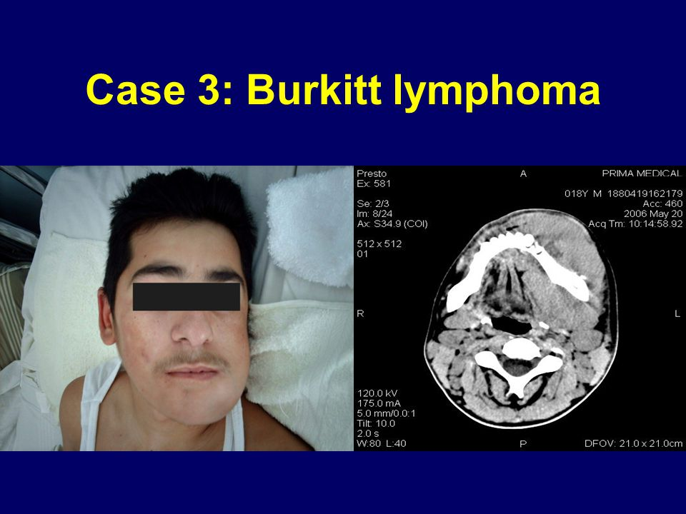 Case 3: Burkitt lymphoma