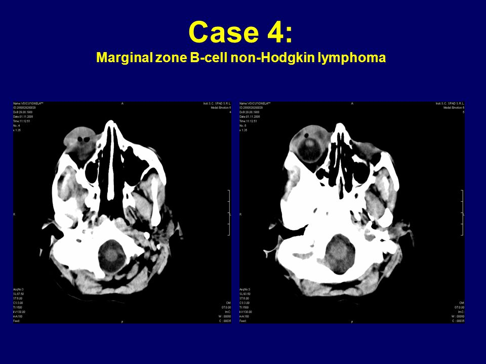 Case 4: Marginal zone B-cell non-Hodgkin lymphoma