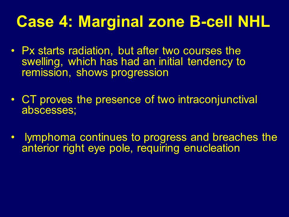 Case 4: Marginal zone B-cell NHL
