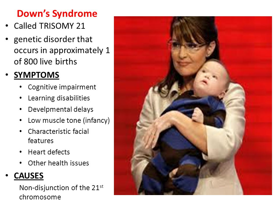 Down's Syndrome Called TRISOMY 21