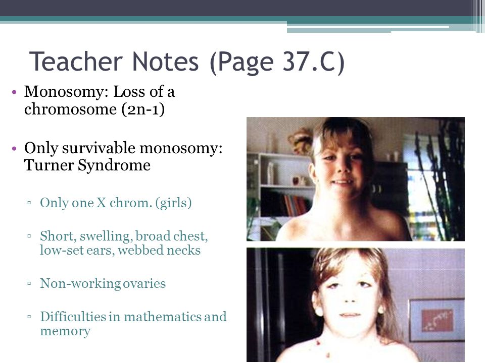 Teacher Notes (Page 37.C) Monosomy: Loss of a chromosome (2n-1)