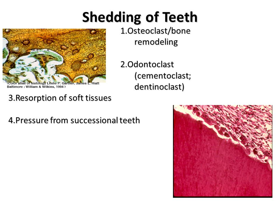 Shedding of Teeth 1.Osteoclast/bone remodeling