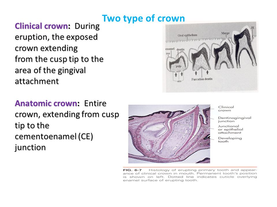 Two type of crown Clinical crown: During eruption, the exposed crown extending. from the cusp tip to the area of the gingival attachment.