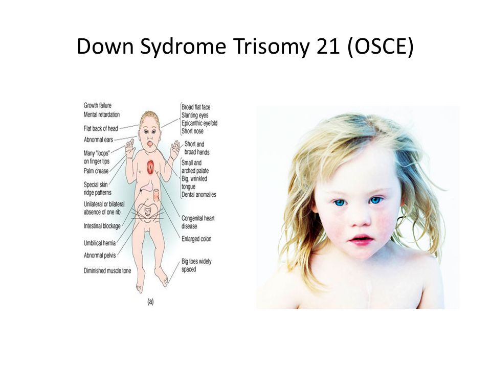 Down Sydrome Trisomy 21 (OSCE)