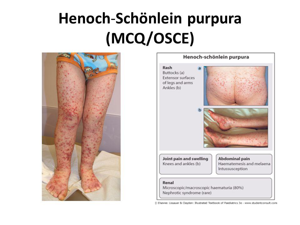Henoch-Schönlein purpura (MCQ/OSCE)