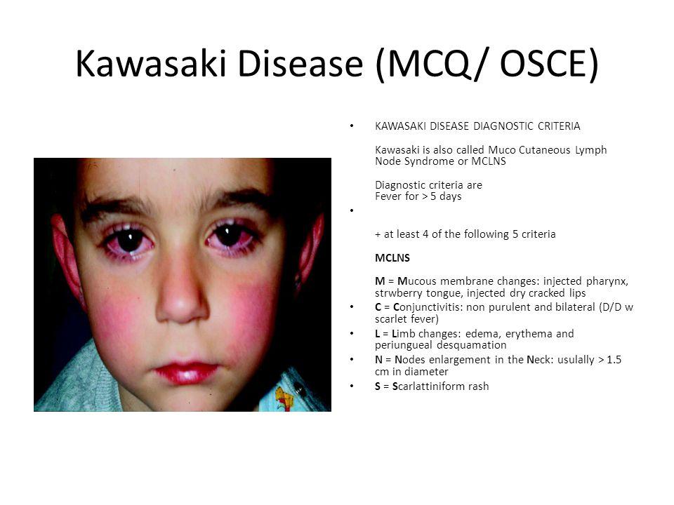 Kawasaki Disease (MCQ/ OSCE)