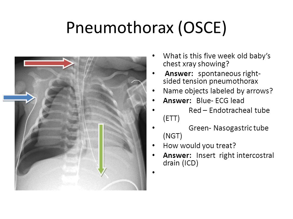 Pneumothorax (OSCE) What is this five week old baby's chest xray showing Answer: spontaneous right-sided tension pneumothorax.