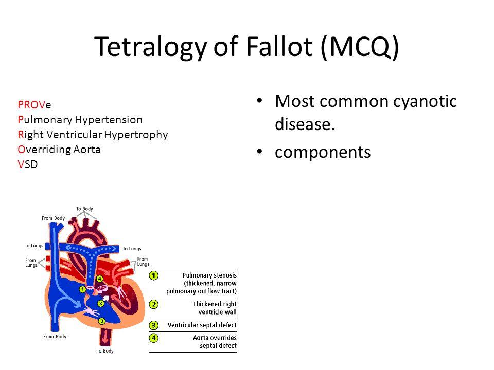 Tetralogy of Fallot (MCQ)