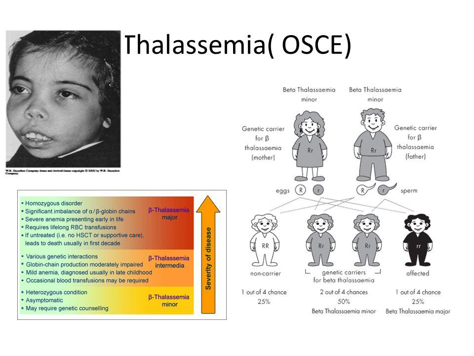 Thalassemia( OSCE)