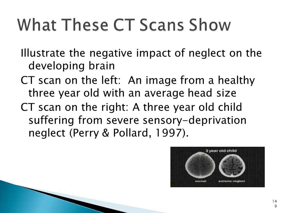 What These CT Scans Show