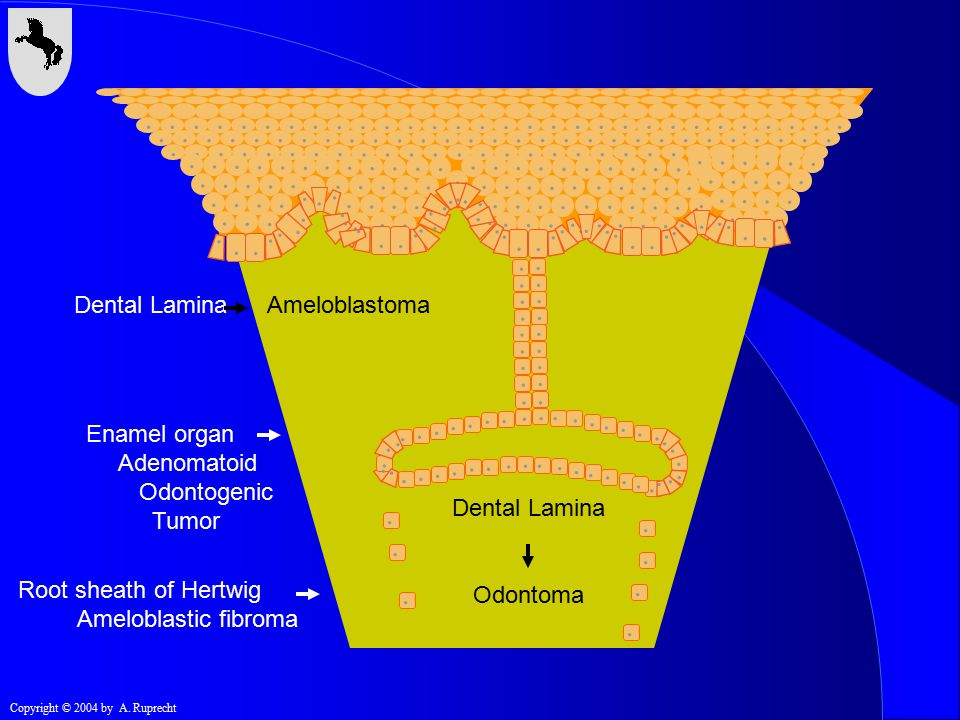 . Dental Lamina Ameloblastoma Enamel organ Adenomatoid Odontogenic