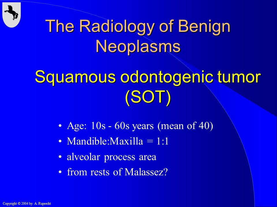 Squamous odontogenic tumor (SOT)