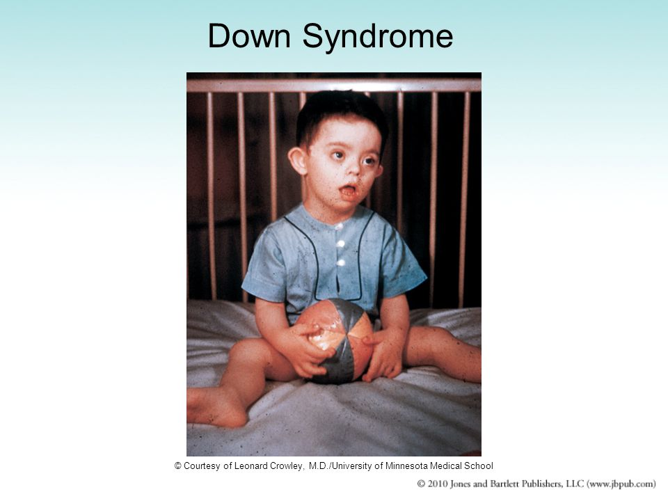 Down Syndrome © Courtesy of Leonard Crowley, M.D./University of Minnesota Medical School