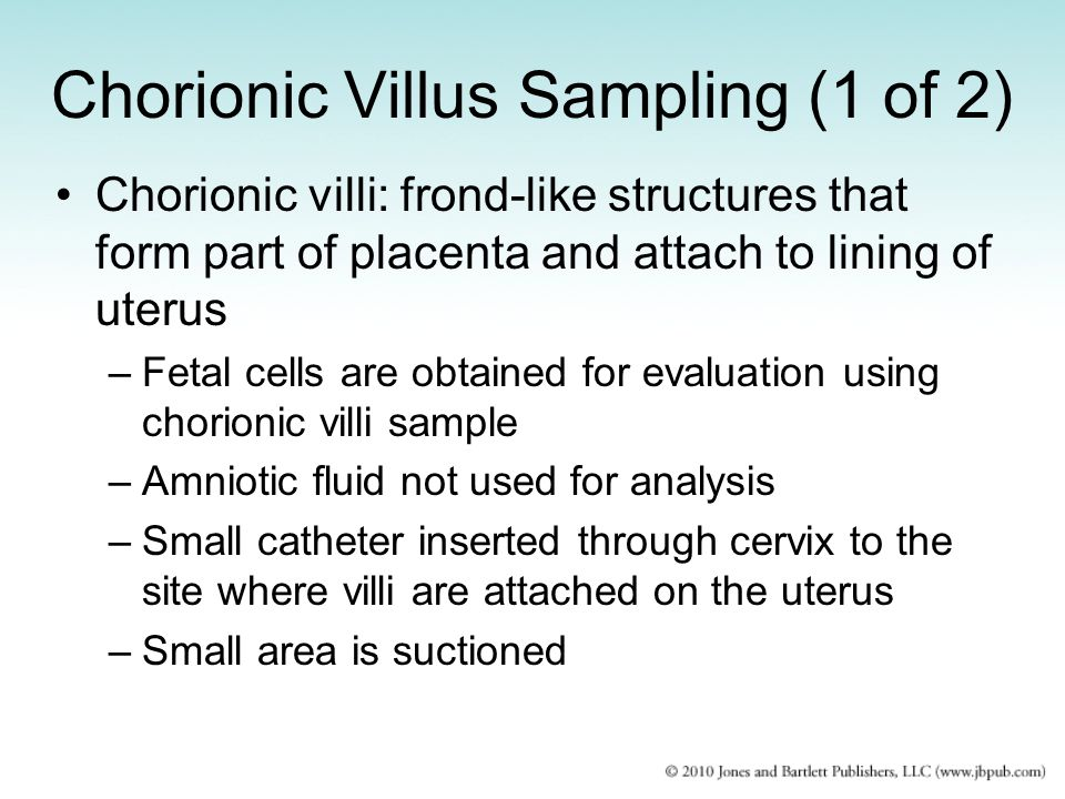 Chorionic Villus Sampling (1 of 2)