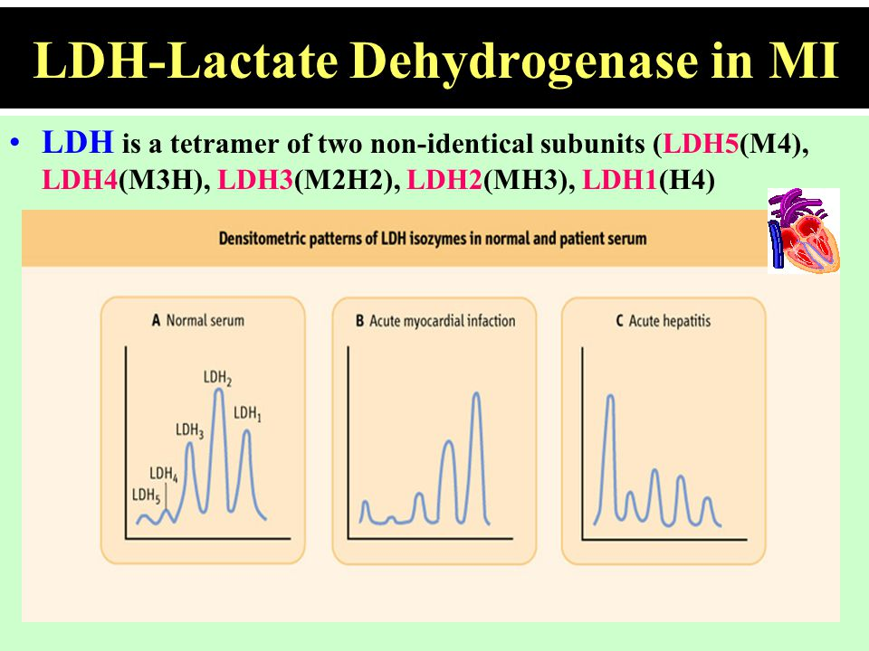 LDH-Lactate Dehydrogenase in MI