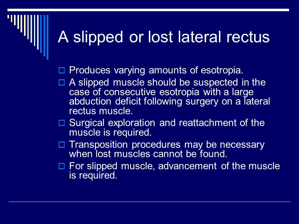 A slipped or lost lateral rectus