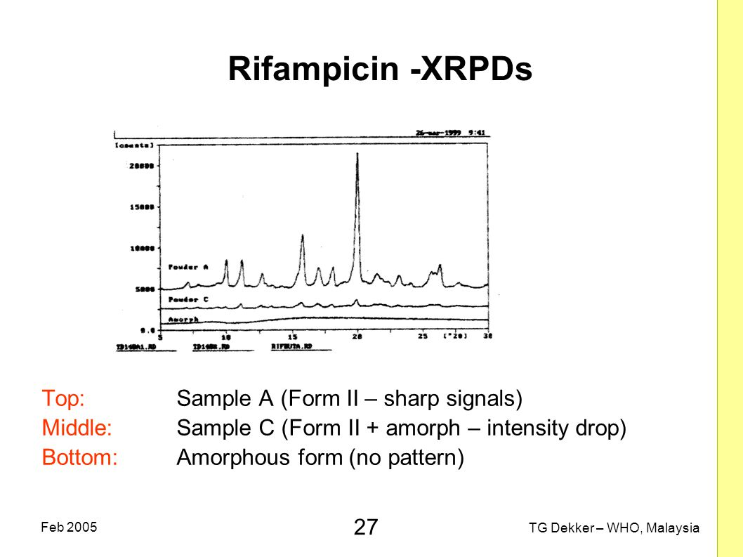 Rifampicin -XRPDs Top: Sample A (Form II – sharp signals)