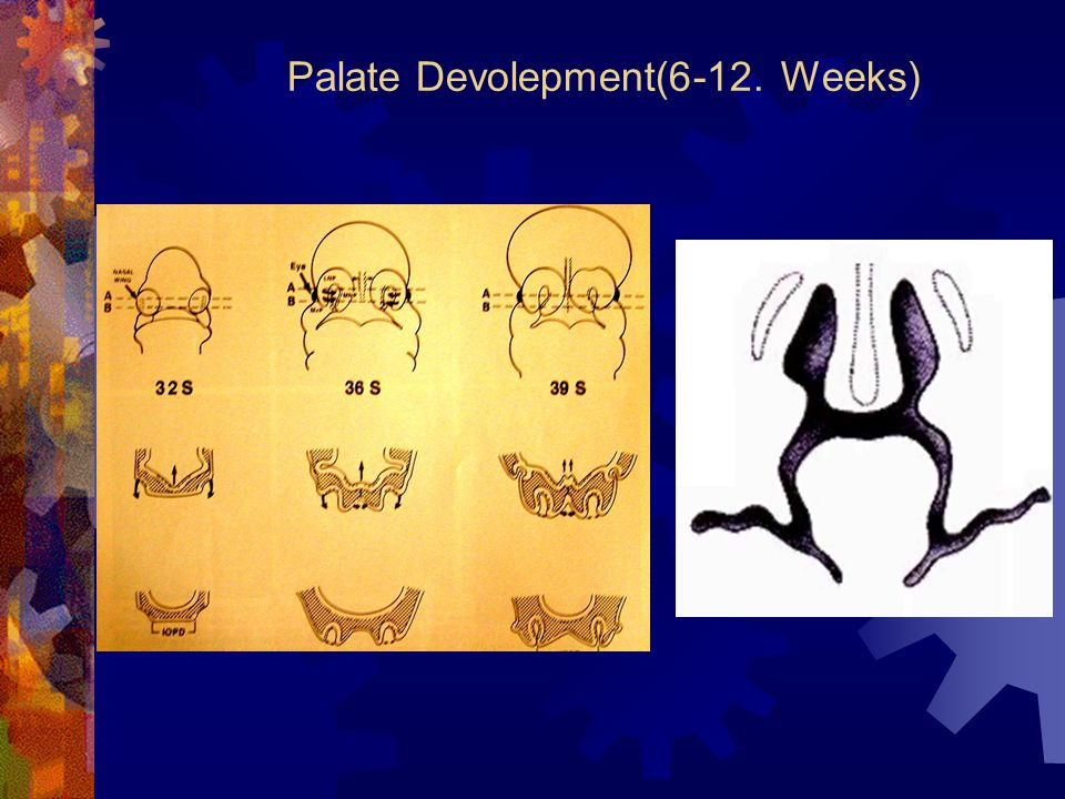 Palate Devolepment(6-12. Weeks)