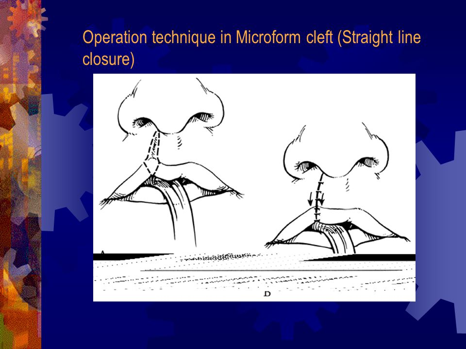 Operation technique in Microform cleft (Straight line closure)