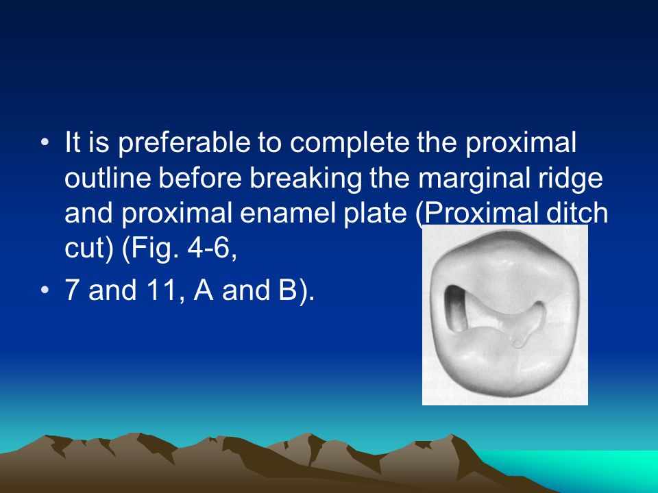 It is preferable to complete the proximal outline before breaking the marginal ridge and proximal enamel plate (Proximal ditch cut) (Fig. 4-6,