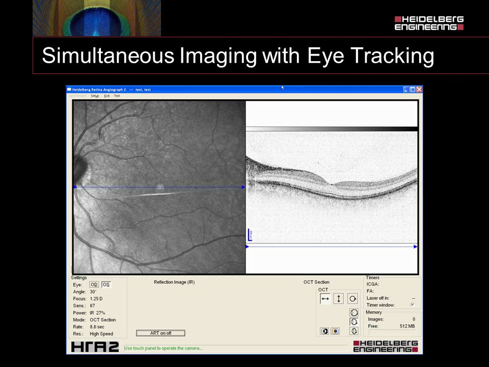 Simultaneous Imaging with Eye Tracking