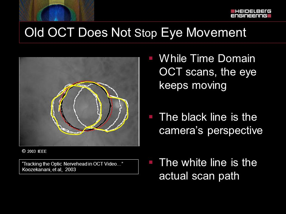 Old OCT Does Not Stop Eye Movement