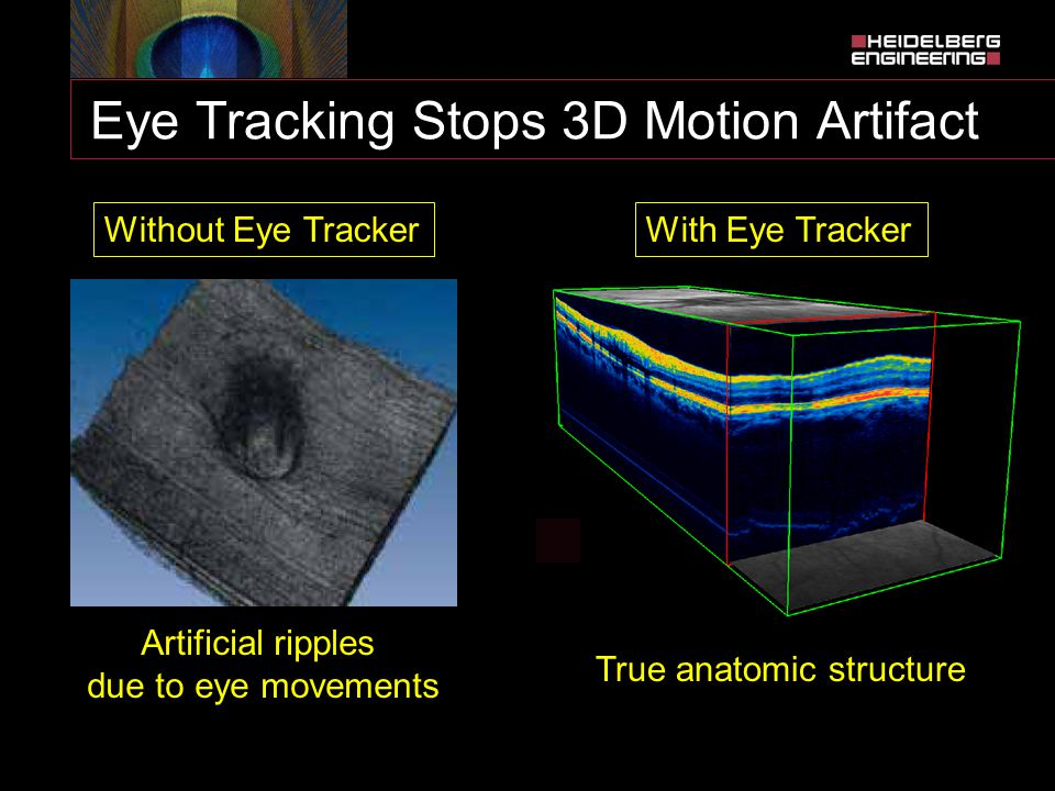 Eye Tracking Stops 3D Motion Artifact